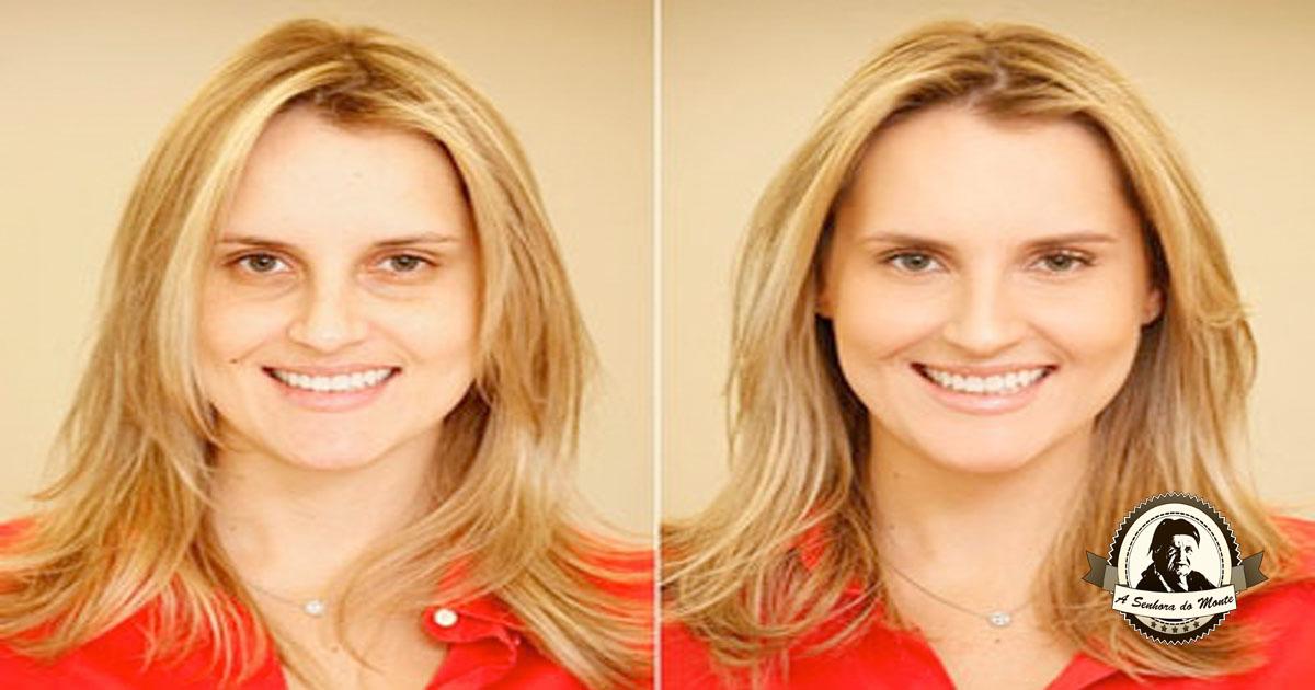 Tratamentos caseiros para acabar com as olheiras