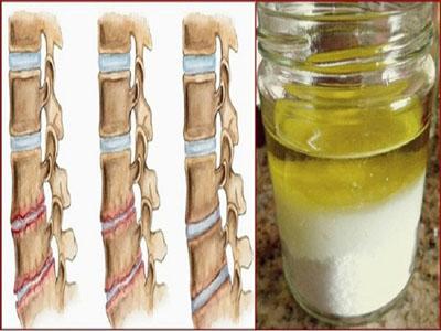 Fortaleça os seus ossos e elimine as suas dores com este tratamento caseiro