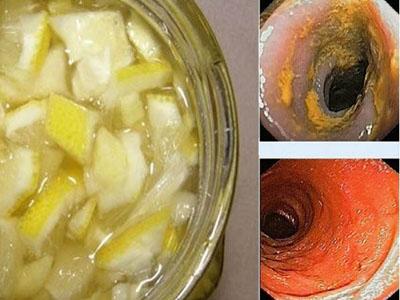Remédio antigo para limpar artérias e baixar pressão arterial