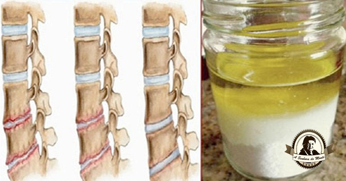 Tratamento caseiro para fortalecer os ossos