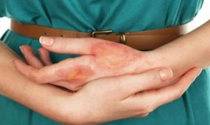 Tratamentos caseiros para queimaduras com óleo a ferver