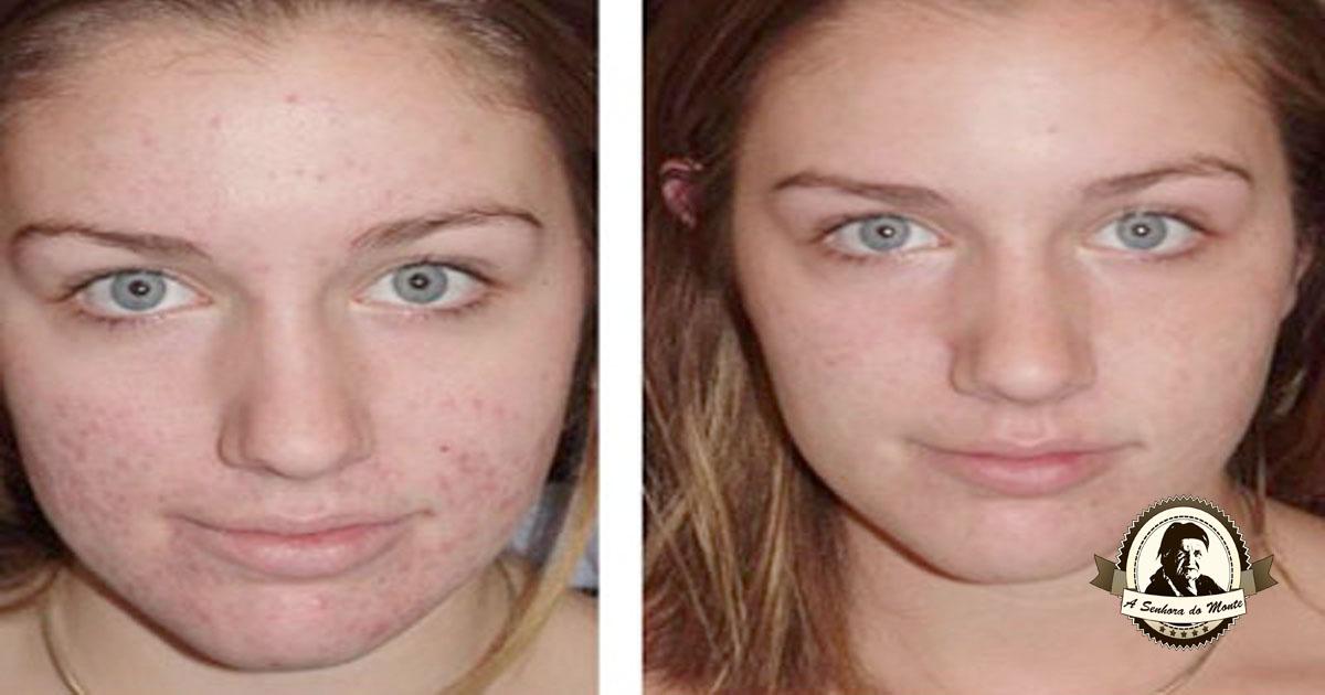 Experimente já os resultados deste tónico facial!
