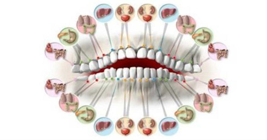 Saiba a que órgão está relacionado cada dor de dente!